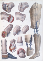 Amputations and Prosthetics, plate from 'Traite Complet de l'Anatomie de l'Homme' by Jean-Baptiste Marc Bourgery (1797-1849) 1866-67 (coloured engraving)