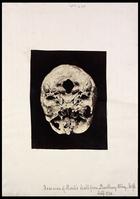 Base of Monk's skull against black background