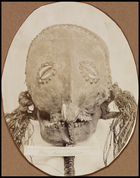 Full face view of masked skull