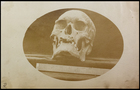 3/4 right profile of skull with ruler placed horizontally against it.