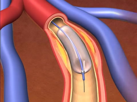 About Your Heart Catheter Procedures