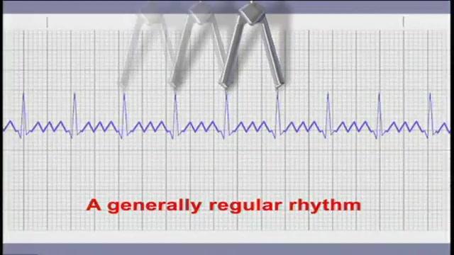 EKG Characteristics of Atrial Flutter