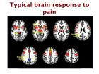 Pain & Physical Activity: From the Muscle to the Brain