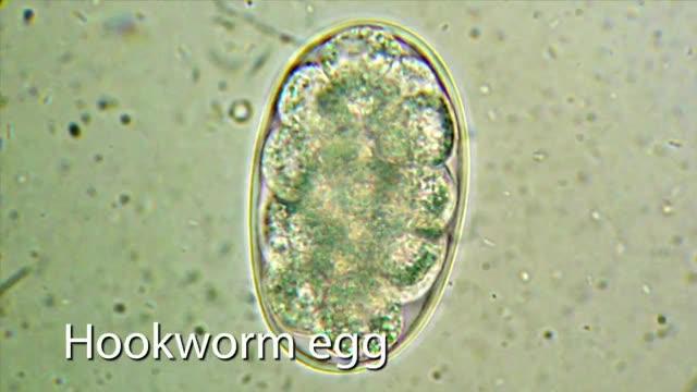 Laboratory Skills 1, Part 7, Intestinal Parasite