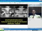 Optimalization of Sinus Augmentation Procedures