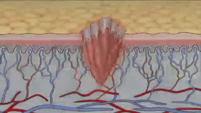 Phases of Healing and Types of Wounds: Phases of Wound Healing